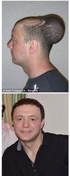 整形医生挽救英国秃子头发的奇葩方法
